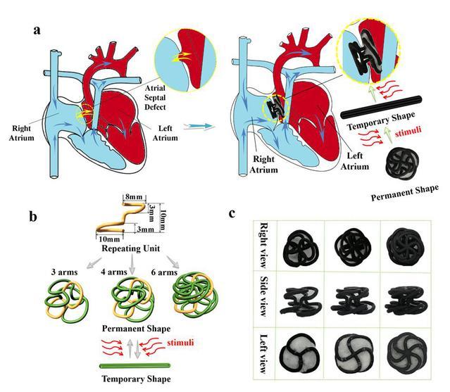 哈工大:冷劲松教授课题组在4D打印形状记忆聚合物新型可降解心脏病封堵装置研究领域取得重大进展