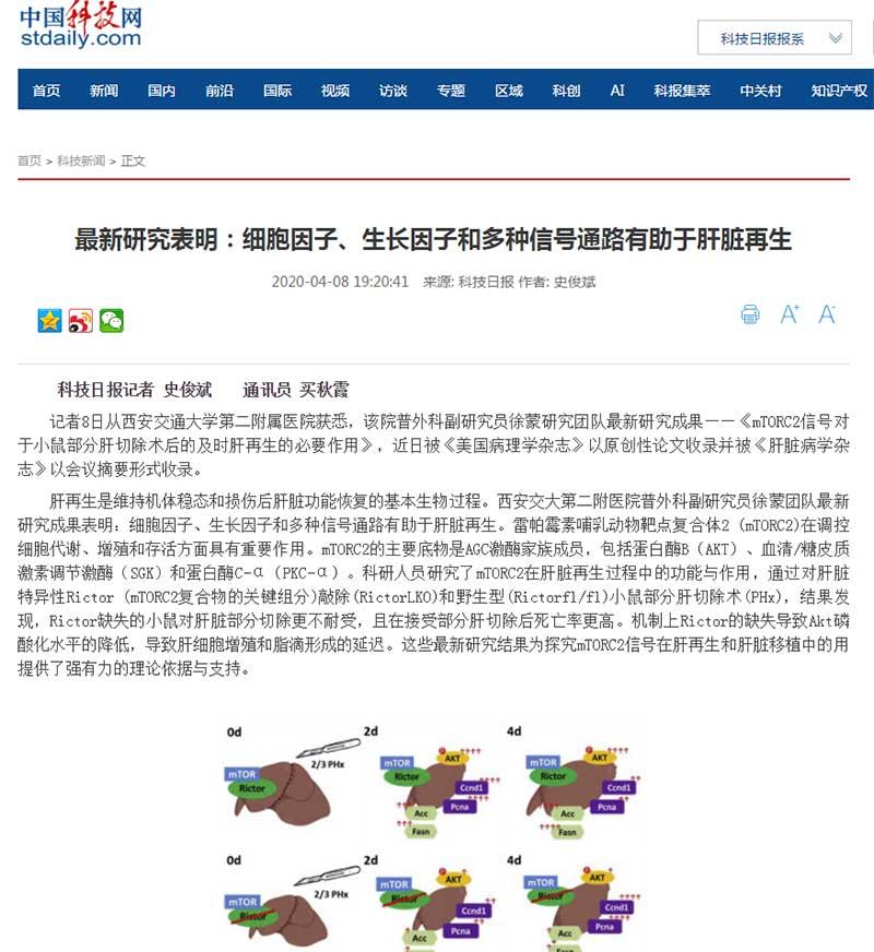 西安交大二附院徐蒙研究团队最新成果:细胞因子、生长因子和多种信号通路有助于肝脏再生