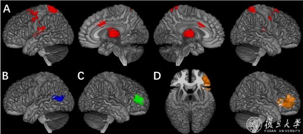 复旦大学贾天野研究员发现青少年多动及注意力缺陷等外向障碍在多个认知环路上的调控机制